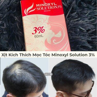 Xịt Kích Thích Mọc Tóc Minoxyl Solution 3% Hỗ Trợ Điều Trị Rụng Tóc Và Hói-1