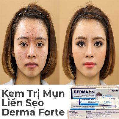 Kem Trị Mụn Liền Sẹo Derma Forte 15g-1