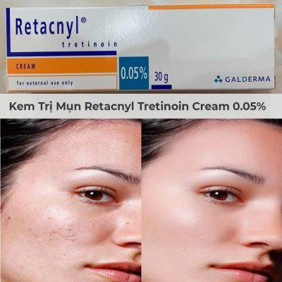 Kem Trị Mụn Retacnyl Tretinoin Cream 0.05% Galderma 30g-4